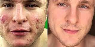 Apakah kulit wajah anda penuh dengan jerawat dan ingin sembuh dengan cara yang simple ? Jika benar, anda perlu tau daftar obat apotik yang bisa hilangkan bekas jerawat secara cepat dan instant