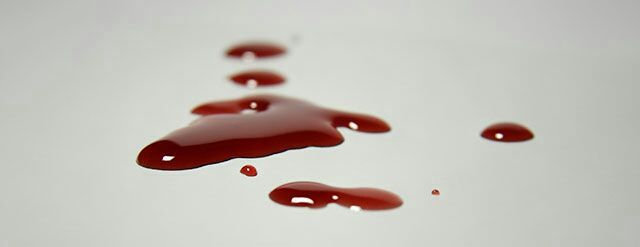 La sangre, es ese liquido con ese encandelizante color que te llena de vida en ese instante en el que lo vez salir, ver como empieza a fluir y el dolor a aumentar, pero
