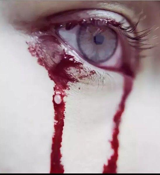 шаман картинка парень с кровавой слезой этим может