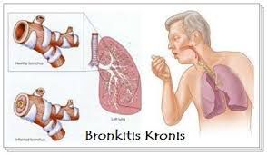 Bronkitis kronis biasanya berasal dari infeksi paru paru yang kebanyakan disebabkan oleh virus
