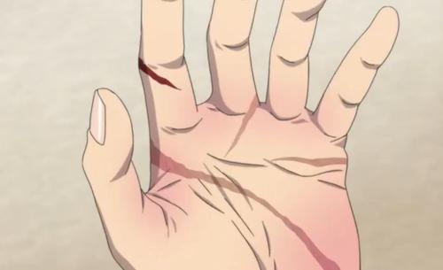 Law: por esas cicatrices que está en tu mano por la palma -observe mi mano y se podía ver mis cicatrices, la gente nunca se da cuenta de eso por eso no me lo tapo