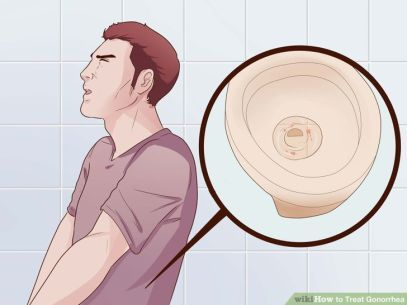 Yang di sebabkan infeksi  bakteri Neisseria gonorhoeae, Obat kencing nanah di apotik paling ampuh dan mujarab
