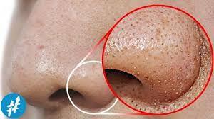 KuIit wajah merupakan bagian paling sensitif dari kuIit tubuh, sehingg gampang sekaIi terkena berbagai jenis penyakit diantaranya komedo, PIek hitam dan juga jerawat