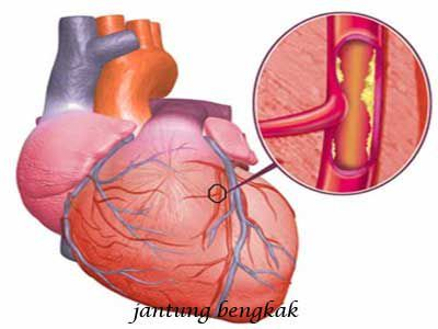 Jantung bengkak atau kardiomegali  bukanlah suatu penyakit, kondisi tersebut justru adalah tanda dari  kondisi klinis atau penyakit tertentu