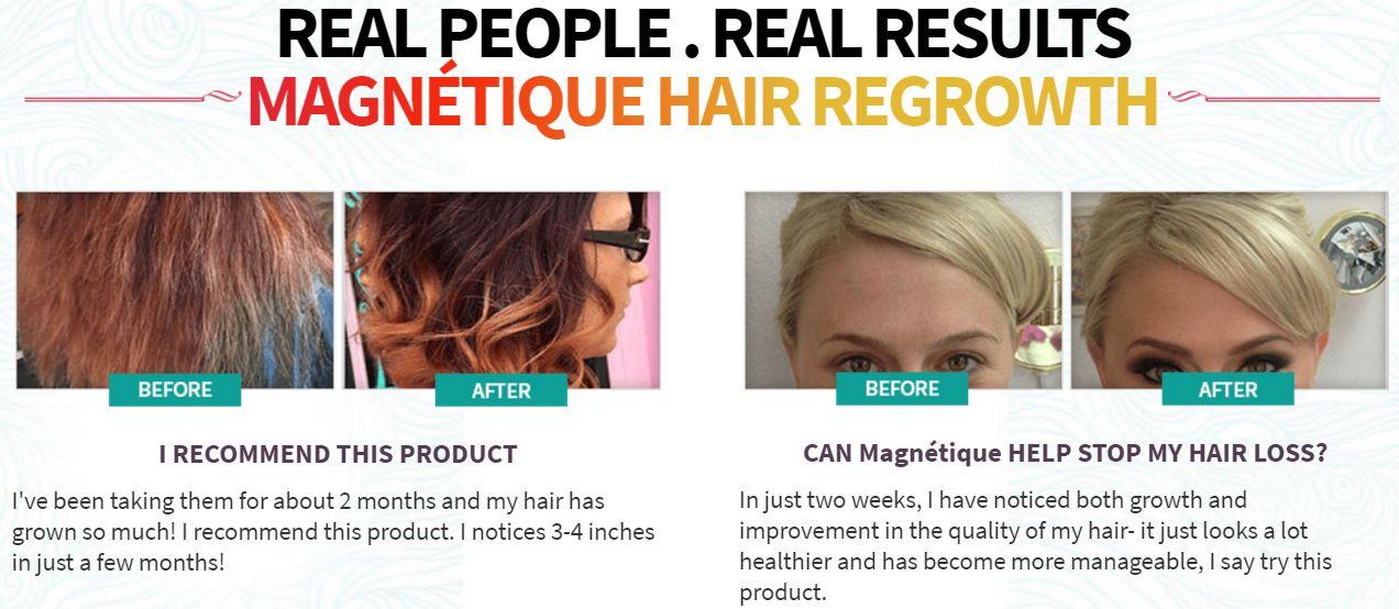 Magnetique hair growth reviews