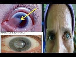 Apakah mata anda sedang katarak ? tenang saja, anda bisa mengatasinya dengan mudah menggunakan obat apotik berikut ini :