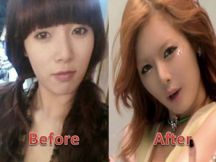 ➽ plastic surgery + kpop {REQUESTS CLOSED} - 8. Kim Hyuna - Wattpad