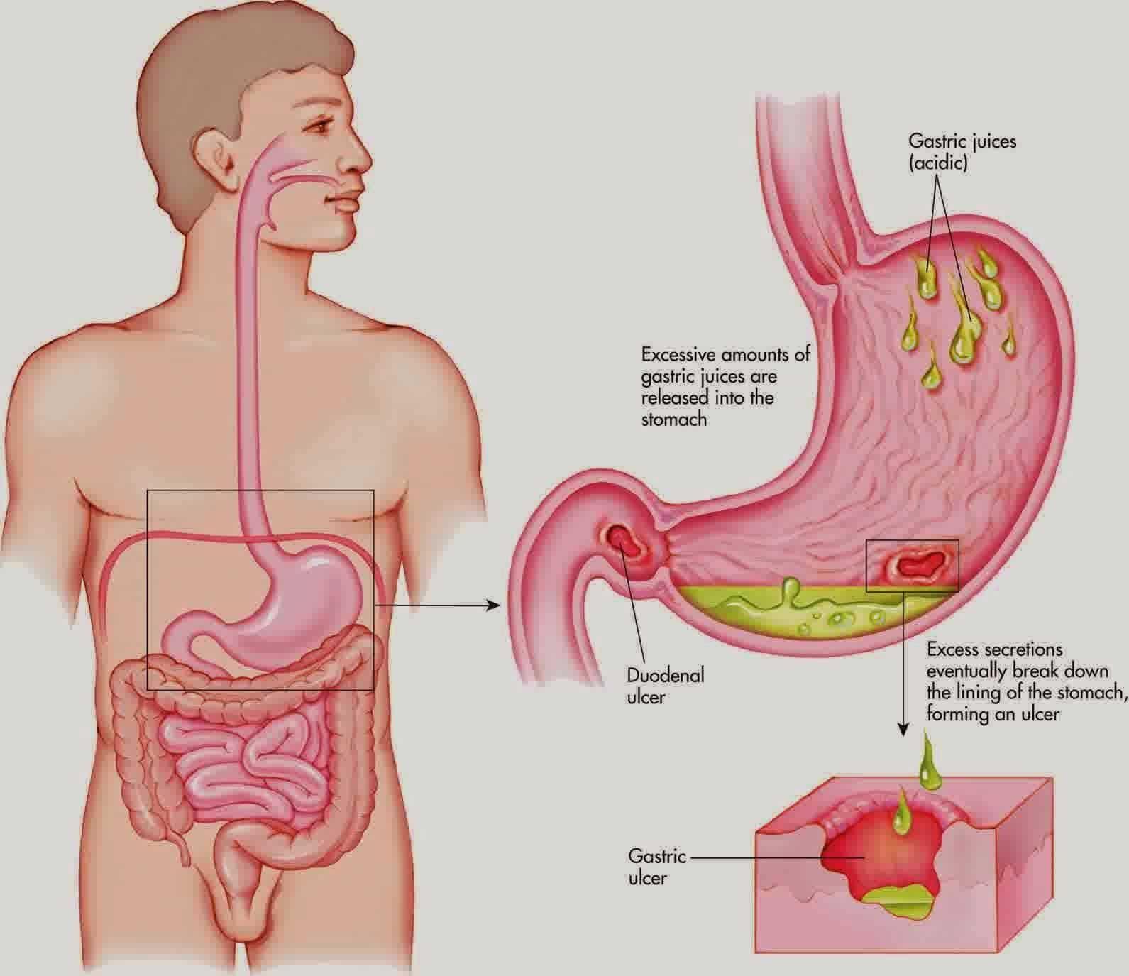 Saat perut kosong maka asam lambung akan menghasilkan asam yang berlebih sehingga menimbulkan sakit maag Banyak obat maag alami dari tumbuhan yang ampuh untuk mengobati masalah asam lambung anda