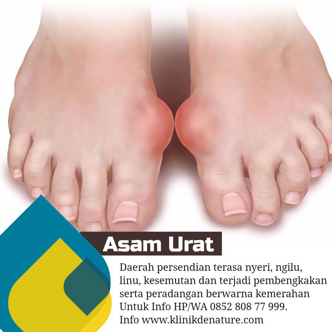Diagnosis penyakit asam uratObat Penyakit Asam Urat Samurago Temuilah dokter jika Anda merasakan gejala-gejala penyakit asam urat